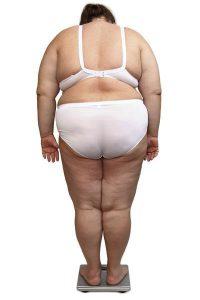 otylosc-i-nadwaga-zdjecia