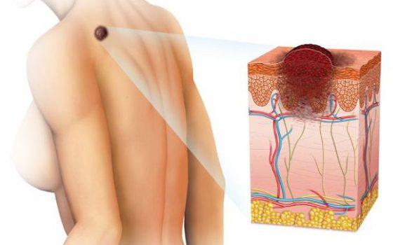 czerniak-objawy-choroby