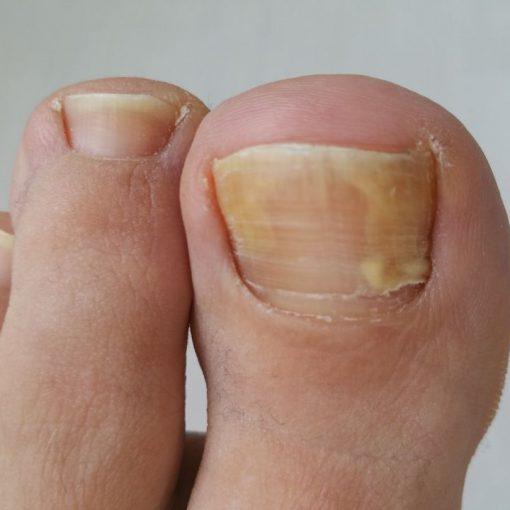 grzybica-choroba-objawy