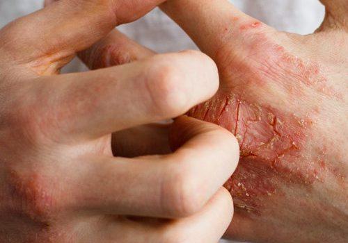 luszczyca-choroba-objawy
