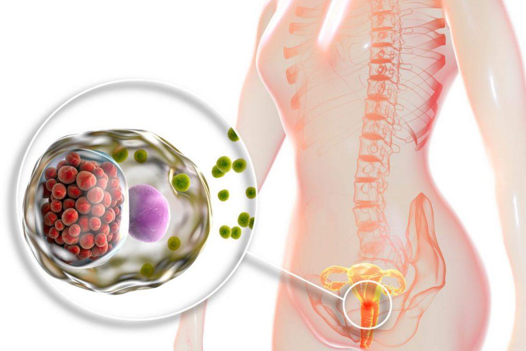 Czym jest chlamydioza? Co powinieneś wiedzieć o tej chorobie?