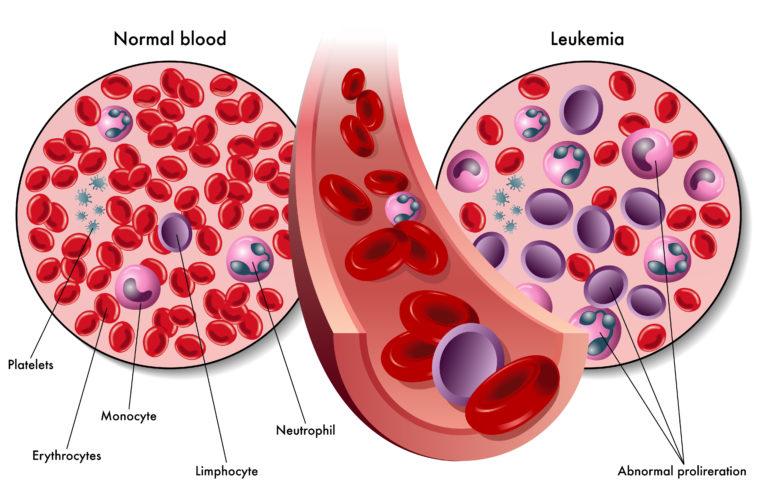 Białaczka to grupa nowotworów o różnym przebiegu i objawach