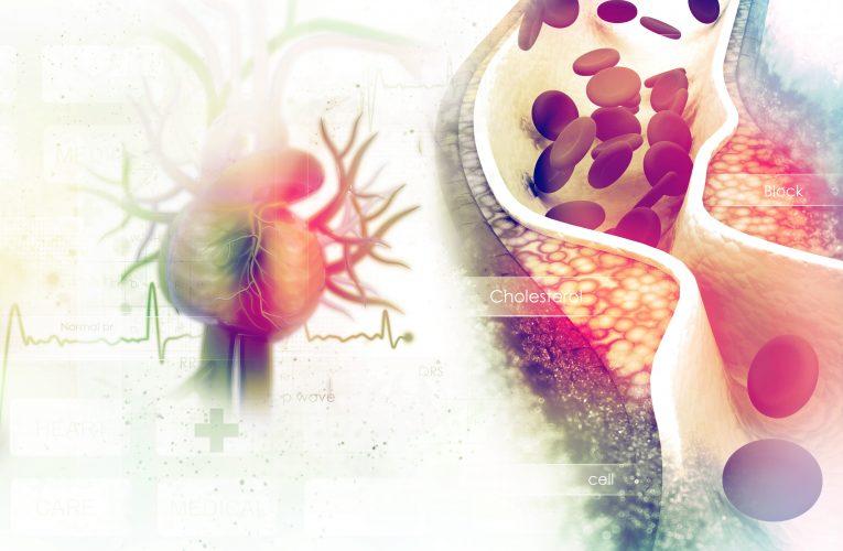 Czym jest choroba niedokrwienna serca? Jakie są jej przyczyny, objawy i przebieg?