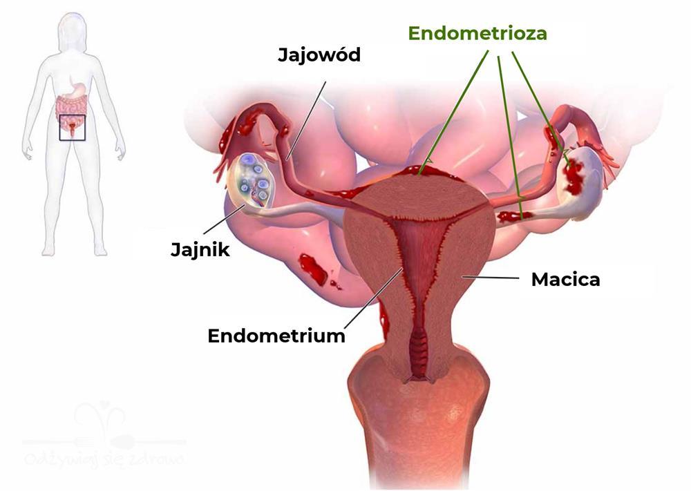 Endometrioza — jakie są objawy i jak sobie z nią radzić?