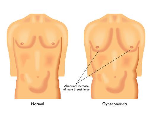Ginekomastia jest chorobą trudną dla mężczyzn z powodu objawów sprzecznych z kanonami urody męskiej