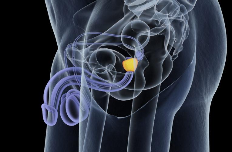 Rak prostaty – jakie są jego przyczyny i objawy? Jak przebiega leczenie?