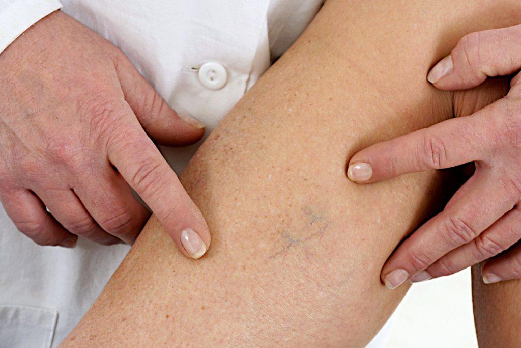 Zakrzepica może być przyczyną poważnych problemów i źródłem niebezpiecznych powikłań