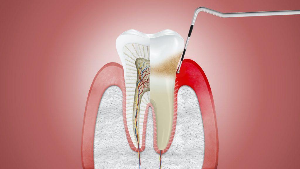 Czynniki ryzyka oraz przyczyny zapalenia dziąseł. Warto dbać o właściwą higienę jamy ustnej!
