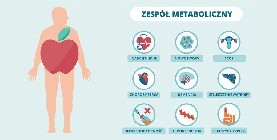 Zespół metaboliczny – czym jest? Jakie daje objawy? Na czym polega jego leczenie?