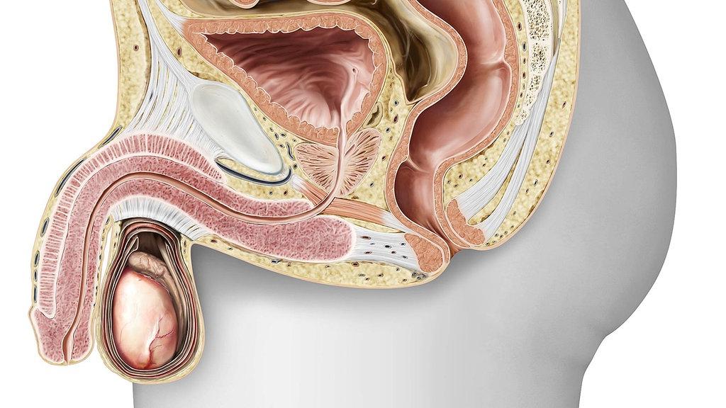 Zapalenie gruczołu krokowego (Prostatitis)