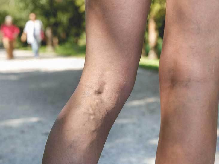 Żylaki: Przyczyny i związane z nimi objawy